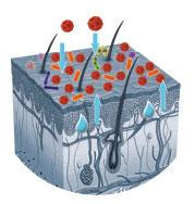 Neurodermitis Wirkungsweise 1